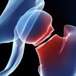 大腿骨頸部骨折リハビリの再考