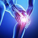 O脚の膝痛は姿勢が問題なの??
