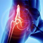 痛みを筋/靭帯で考えるは非常識!