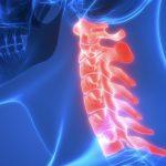 長期の『肩痛』は頚椎が犯人