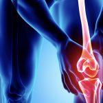 ひざ痛の裏に隠れていた危険な疾患