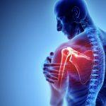 肩挙上時痛の意外な原因