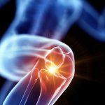 膝痛を解消させる問診力の凄さ