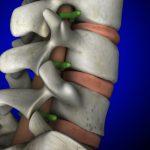 椎間関節性腰痛でも筋肉にアプローチすべき理由