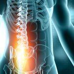 腰痛はリリースと神経生理で治せ!