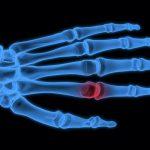 2ヶ月続く指痛は関節のズレが原因!