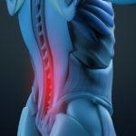 腰痛治療で見逃しやすい足部機能