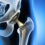 大腿骨頚部骨折全置換術の大胆なリハメニューで痛みが寛解!(後方侵入編)