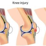 膝蓋腱炎には裸足運動が有効なワケ