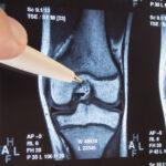 面倒でもMRIは撮るべき!鵞足炎の診断が半月板損傷に覆る瞬間