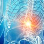 改善しない腰痛はアライメントだけを見過ぎが原因